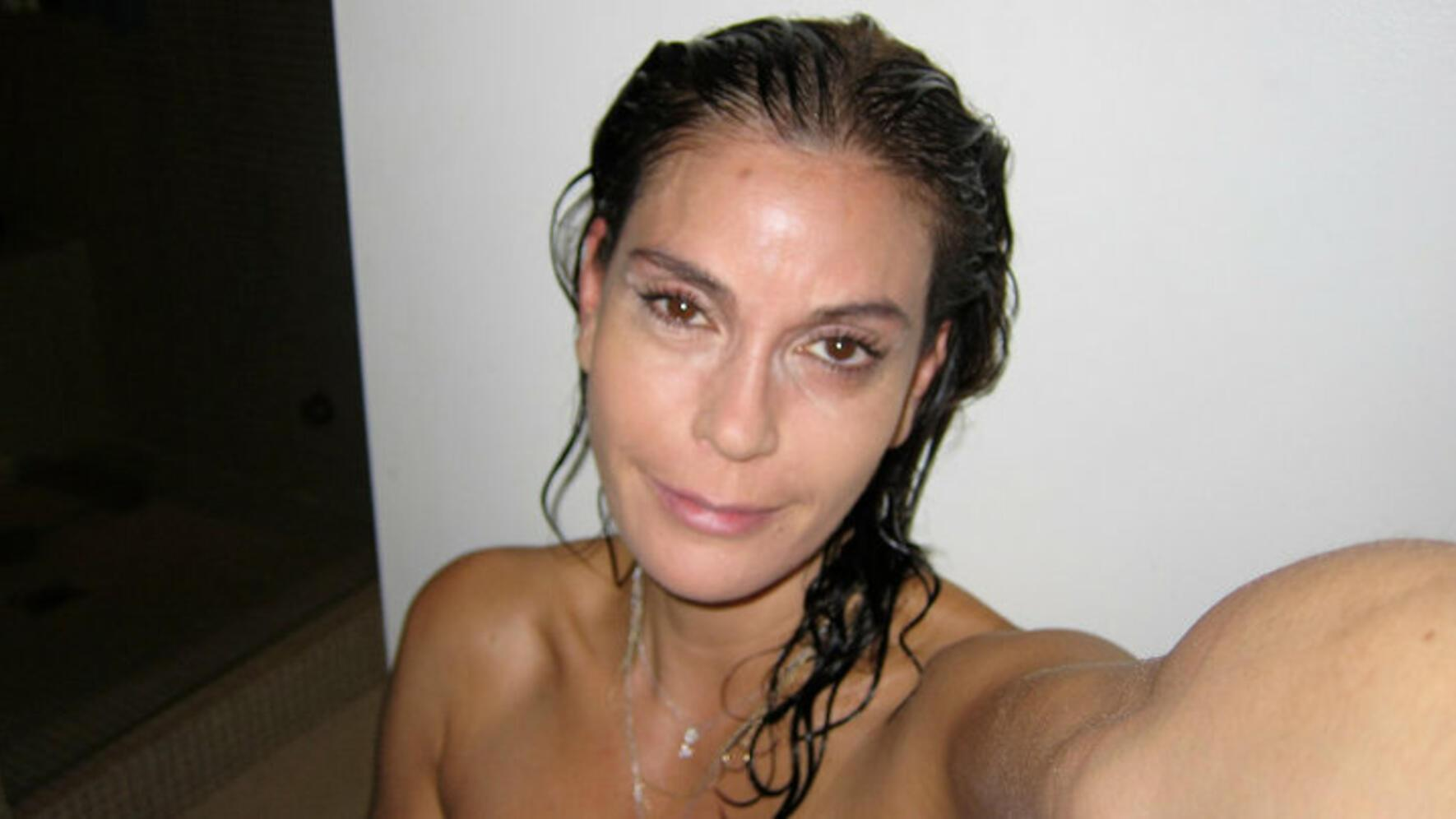 1 Teri Hatcher Botox Facebook